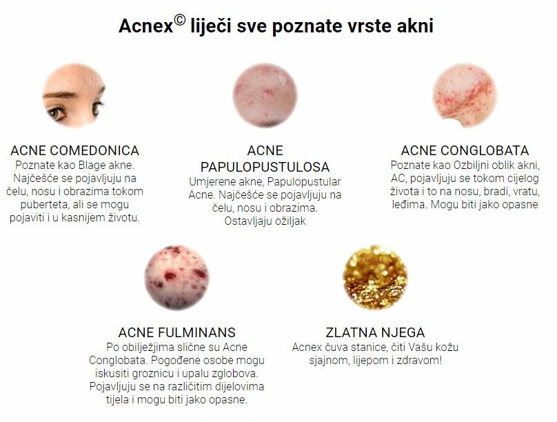 Acnex